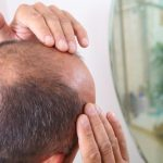 Signs of aging bald head