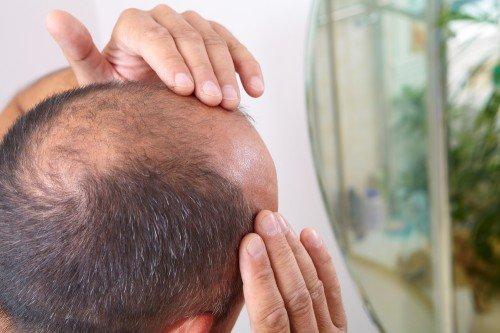 Alterserscheinung Glatze